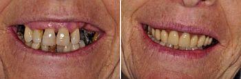 impianti-dentali-senza-osso